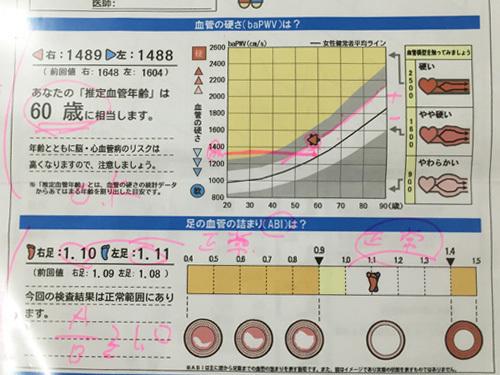 血管測定結果